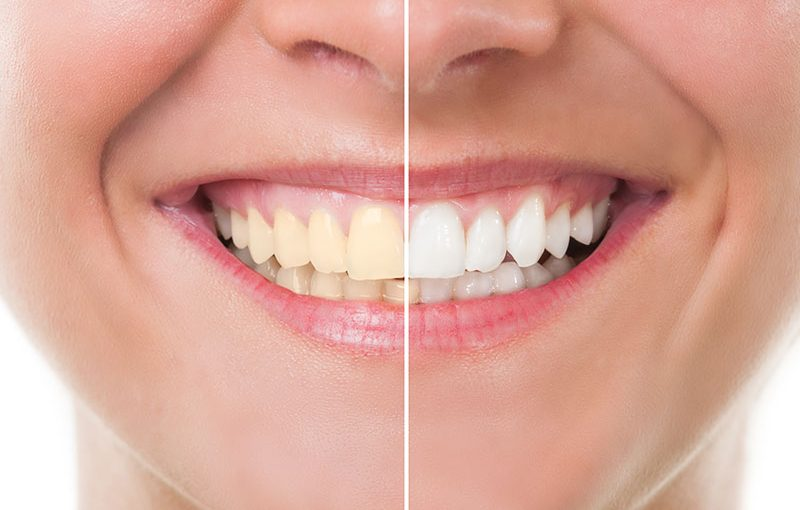 teeth whitening oxnard