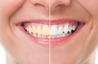 Tooth Colored Dental Fillings in Oxnard